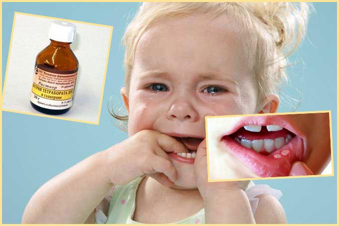 Ребенко плачет стоматит на губе и раствор натрия тетрабората