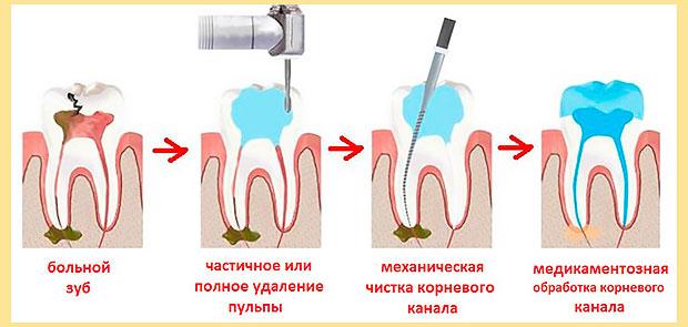 Этапы удаления пульпы при пульпите, чистке и лечении