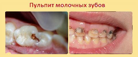 Пульпит молочных зубов разной стадии