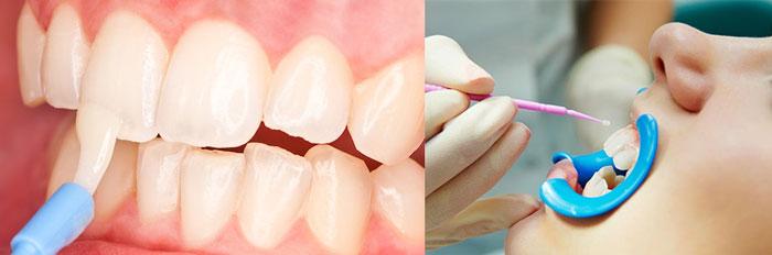 Покрытие зубов фторовым раствором