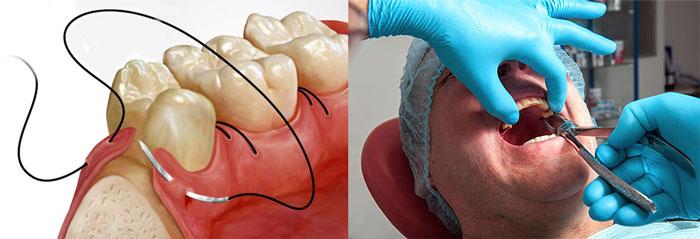 Стоматологическое удаление зуба мудрости