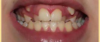 У ербенка режутся зубы и клыки