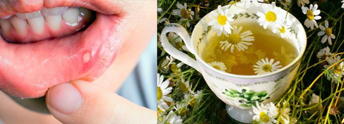 Афтозный стоматит на губе и отвар ромашки