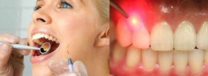 Варианты лечения пародонтита чистка лазером