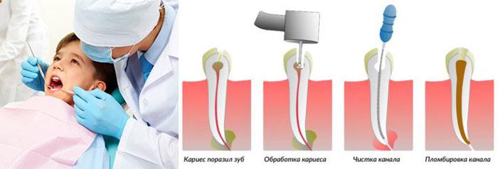 Ребенок в стоматологии и этапы частичного удаления пульпы