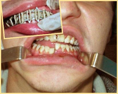 Перелом челюсти и шинирование