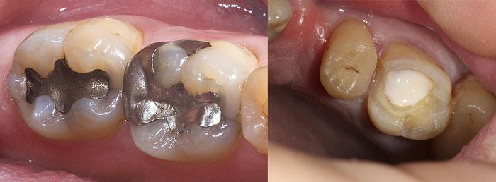 Разновидности зубных пломб