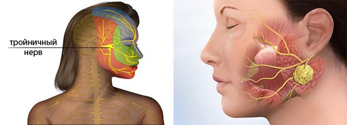 Тройной нерв на лице и Абцесс на щеке