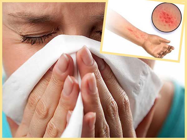 Аллергический насморок и сыпь
