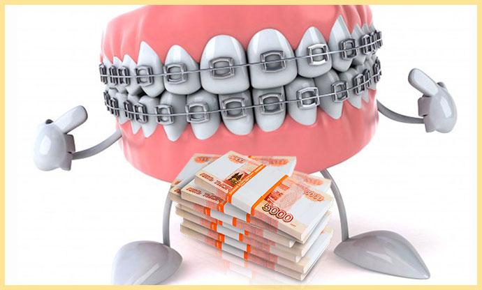 Брекеты на зубах и пачка денег