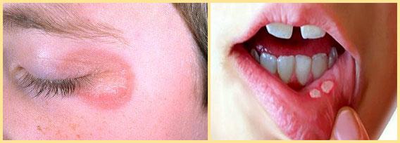 Кожный кондидоз и стоматит на губе
