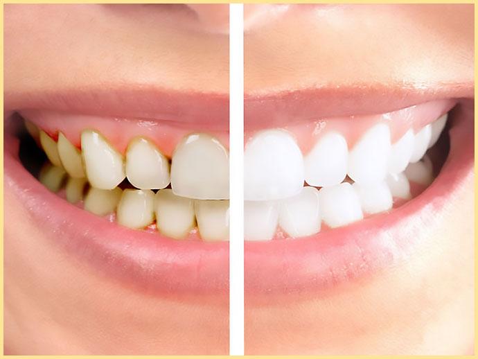 Зубы до и после чистки с Air Flow