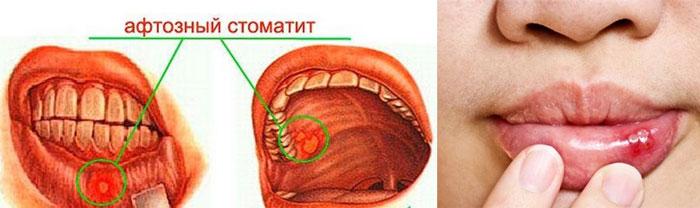 Виды афтозного стоматита