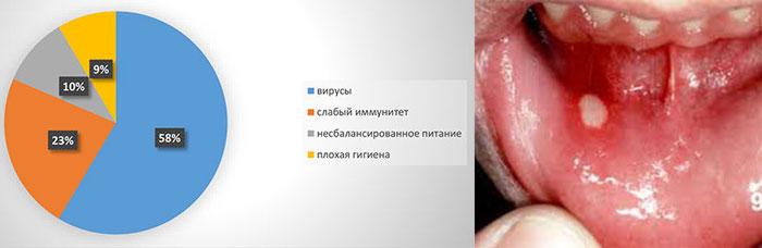 Стоматит - причины - вирусы, слабый имунитет и плохая гигиена