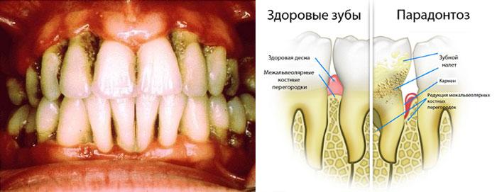 Здоровый зуб и парадонтоз внешний вид