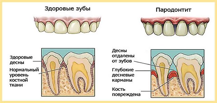 Вид здоровые зубы и пародонтит