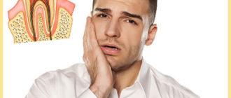 У мужчины болит зуб под пломбой