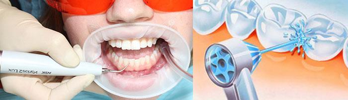 Работа технологии Air Flow чистка зубов