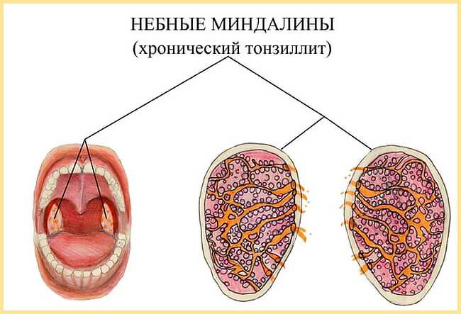 Небные миндалины при хроническом тонзиллите