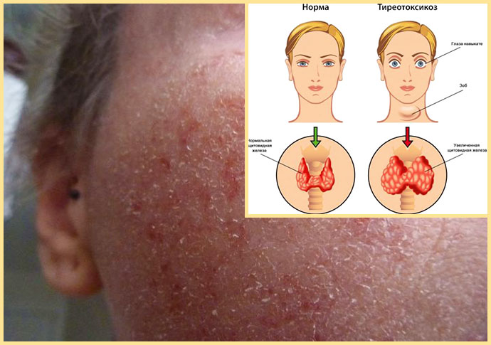 Экзема на лице и тиреотоксикоз