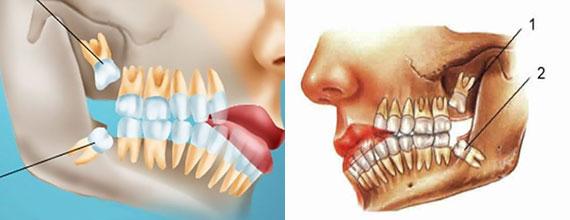 Схема прорезания зуба мудрости