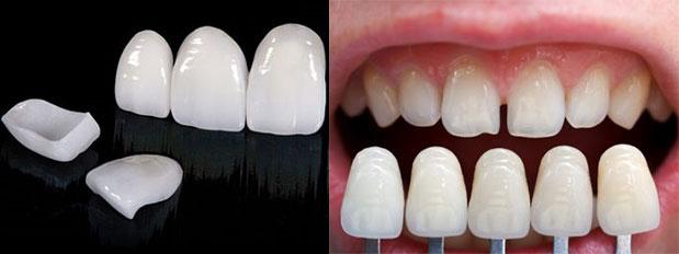 Подбор винир на зубы