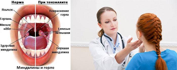 Схема нормы миндалин и горла и вид при тонзилите