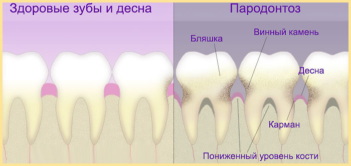 Вид Здоровые зубы и десна и парадонтоз