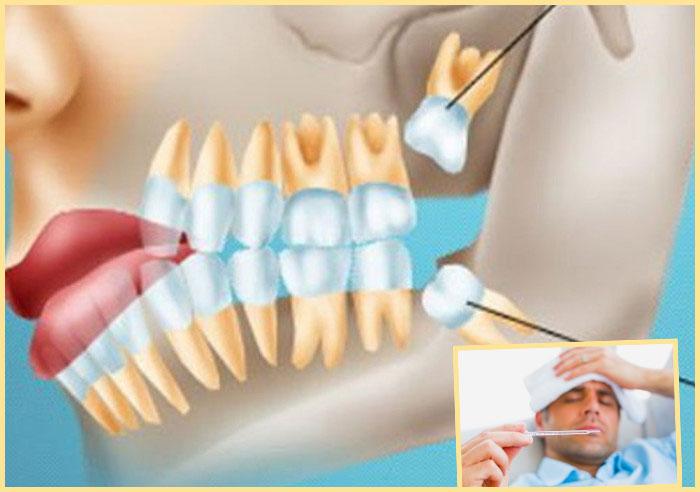 Схема роста зубов мудрости и температура при этом
