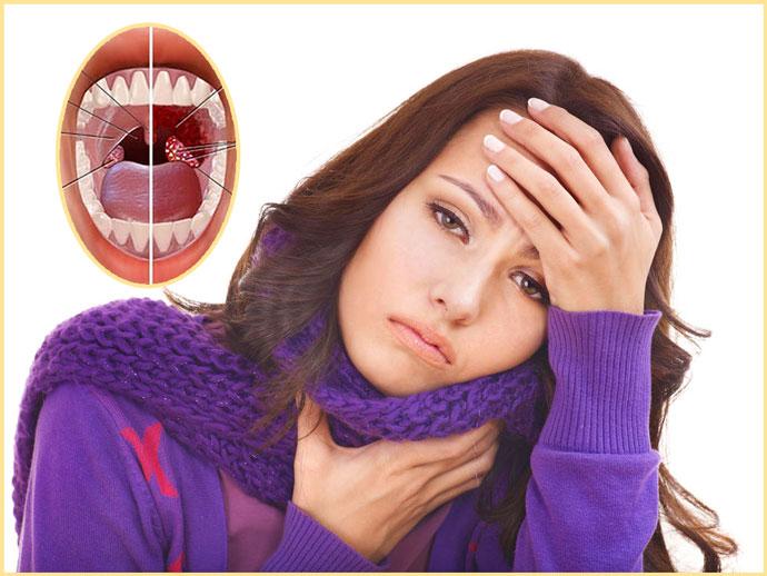 Воспаление миндалин, у девушки боль в горле и жар
