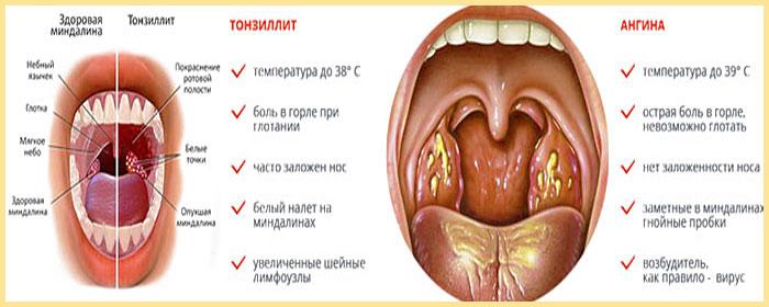 Тнзиллит ангина их причины и симптомы