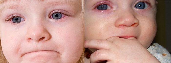 Конъюктевит у детей при росте зубов