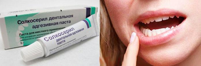 Болезни полости рта и гель солкосерил