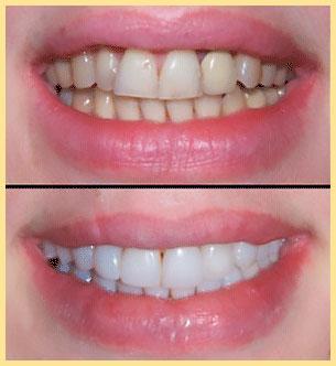 Зубы до и после установки виниры