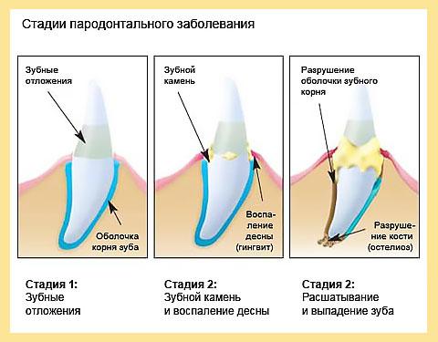 Стадии пародонтального заболевания