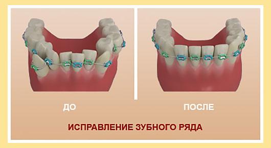 Исправление зубного ряда брекетами