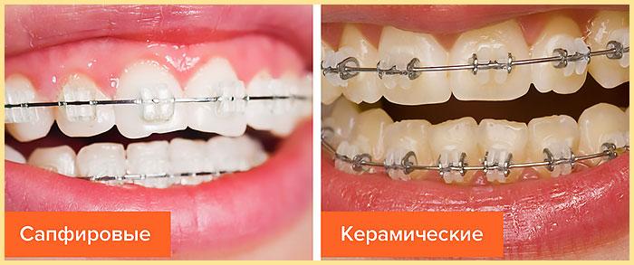 Сапфировые и керамические брекеты на зубах