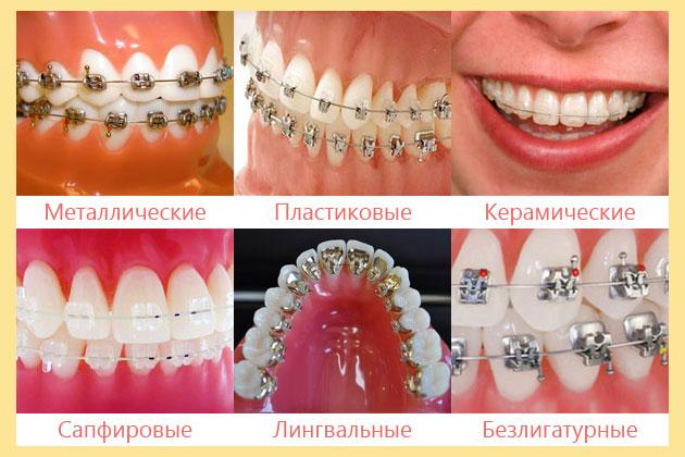 Брекеты: металические, сапфировые, пластиковые, лингвальные, керамические, безлегатурные