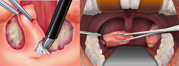Схема удаления миндалин