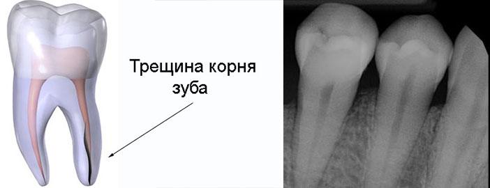 Трещина корня зуба снимок и схема