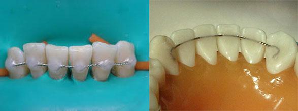 Несъемные шины на зубы