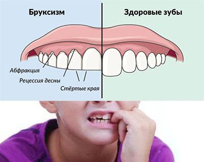 Форма зубов при бркусизме и здоровые зубы
