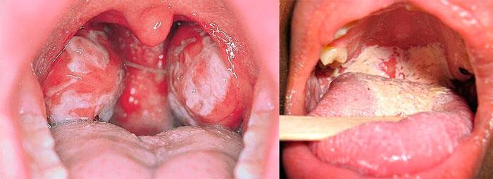 Грибковый налет на языке и полости рта