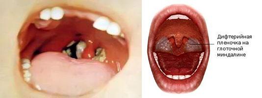 Налтен языке и дифтерийная пленочка на глоточной миндалине