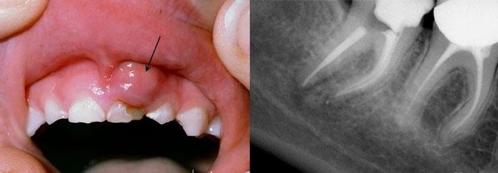 Воспаление в корнях зубов