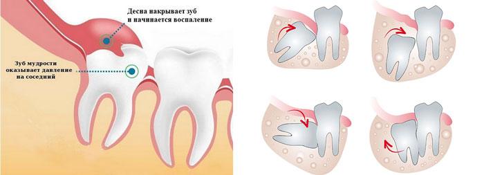 десна накрывает зуб мудрости и начинается воспаление