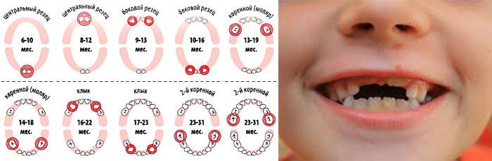 Схема роста зубов по срокам и возрасту и ребенок с растущими зубами