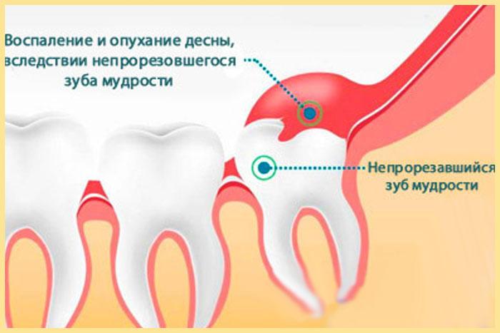 Воспаление десны и зуб мудрости