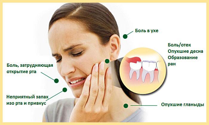Точки болевых симптомов при росте зуба мудрости