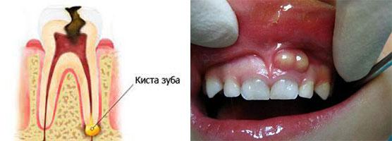 Киста зуба схема и снимок